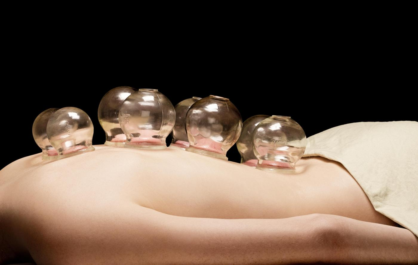 cupping massage therapy chinese medicine